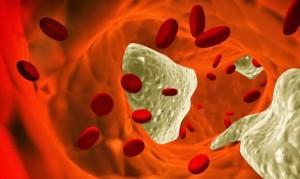 colesterol no sangue